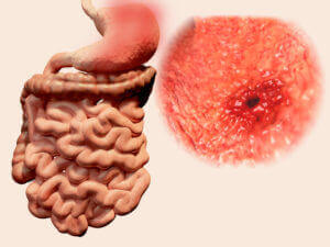 Difficult to Stomach: Helicobacter pylori and Gastric Cancer